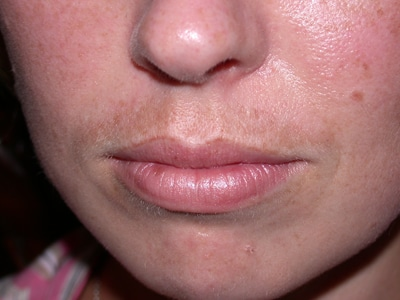 Best Melasma Upper Lip Treatment 3 Steps To Fade Your Sun Stache Fast
