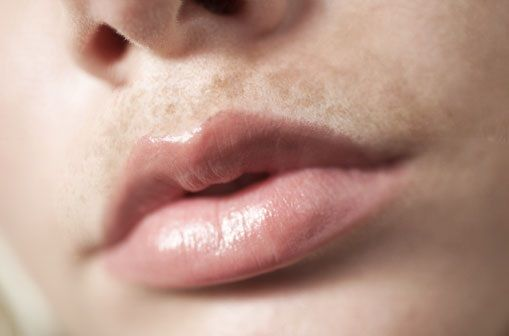 How to Remove Dark Spots on Lips Fast & Naturally